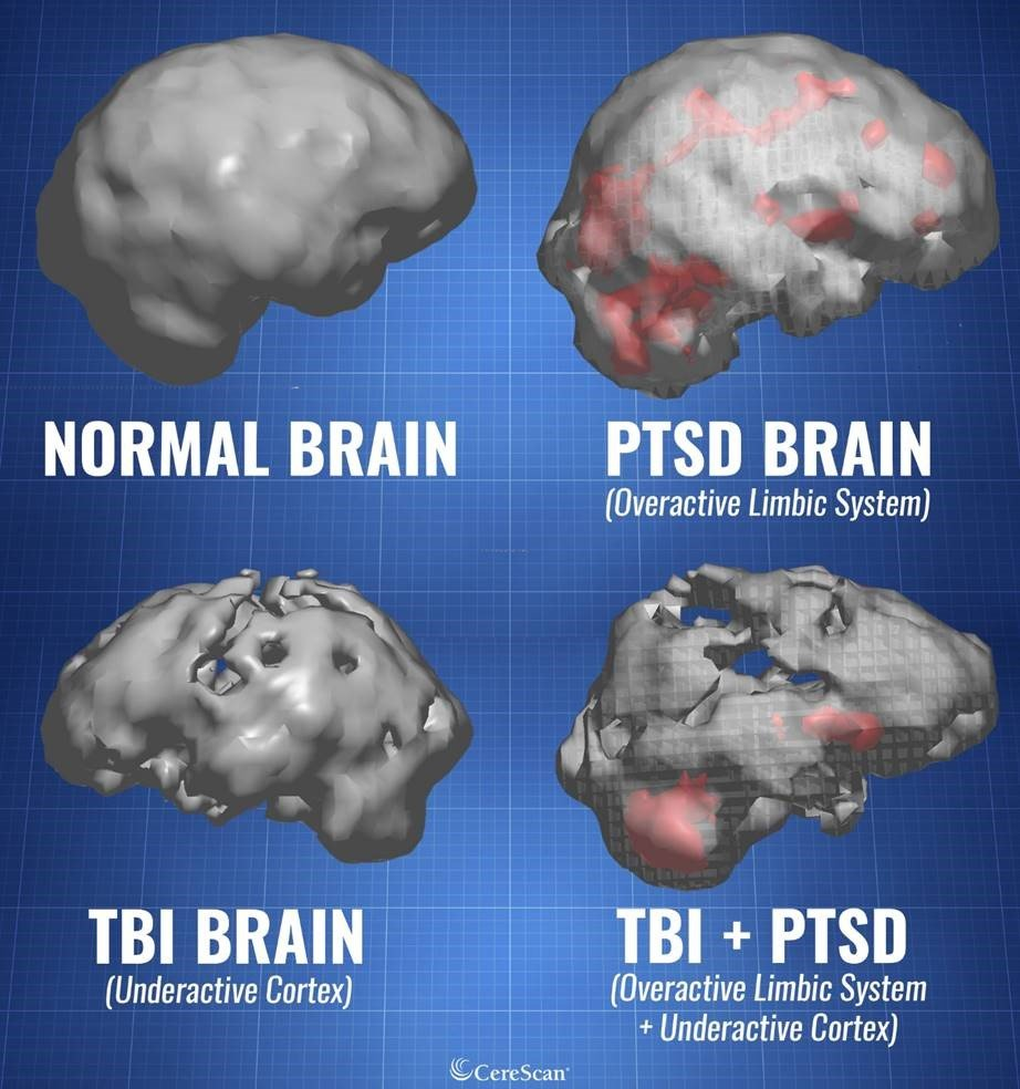 normal PTSD TBI